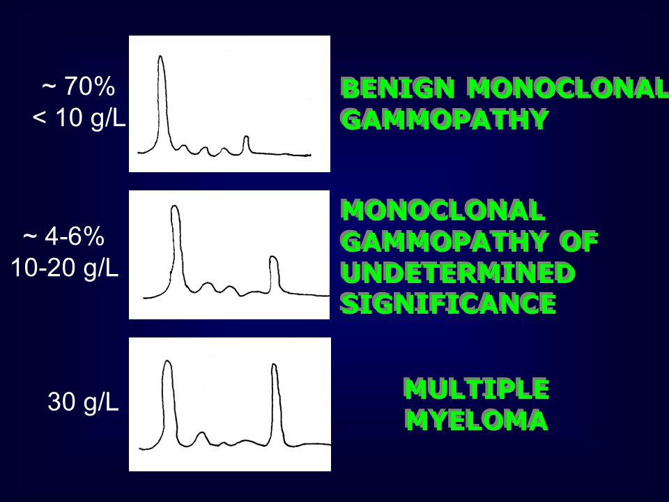 Sintomi neurologici Dolore di tipo radicolare Deficit motori e di sensibilità Polineuropatia periferica Neuropatia sensitiva motoria quando c'è produzione di Ab (IgM, IgA, IgG) contro strutture nervose quali glicoproteina mielina associata (MAG) Mieloma