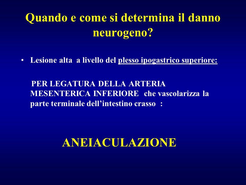Quando e come si determina il danno neurogeno? Lesione alta a livello del plesso ipogastrico superiore: PER LEGATURA DELLA ARTERIA MESENTERICA INFERIO