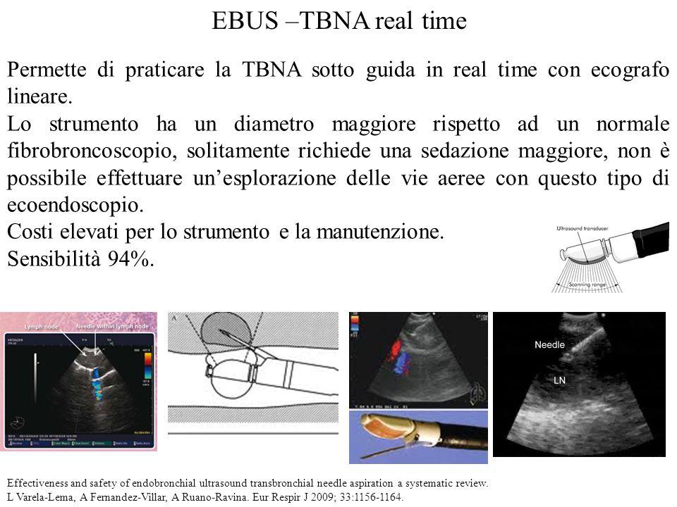 EBUS –TBNA real time Permette di praticare la TBNA sotto guida in real time con ecografo lineare. Lo strumento ha un diametro maggiore rispetto ad un