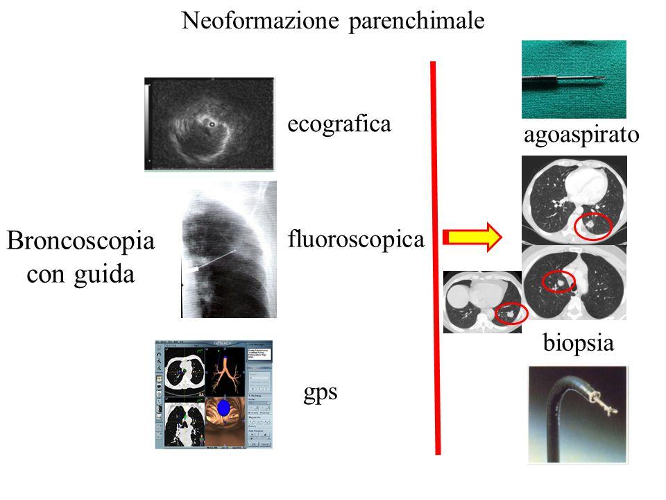 Neoformazione parenchimale ecografica fluoroscopica gps Broncoscopia con guida agoaspirato biopsia