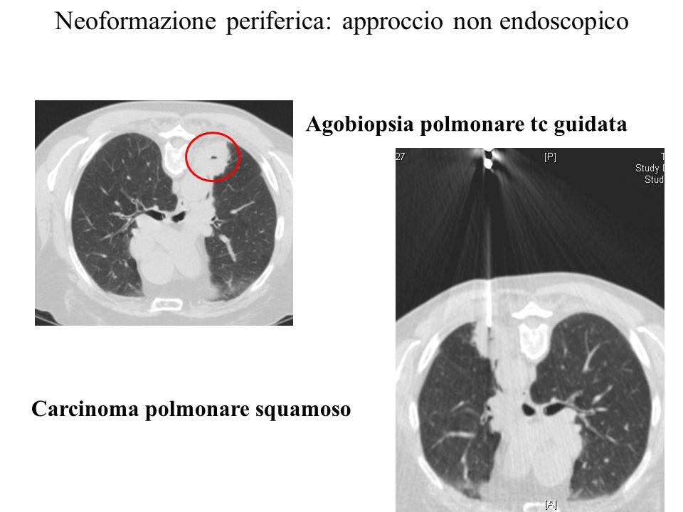 Agobiopsia polmonare tc guidata Carcinoma polmonare squamoso Neoformazione periferica: approccio non endoscopico