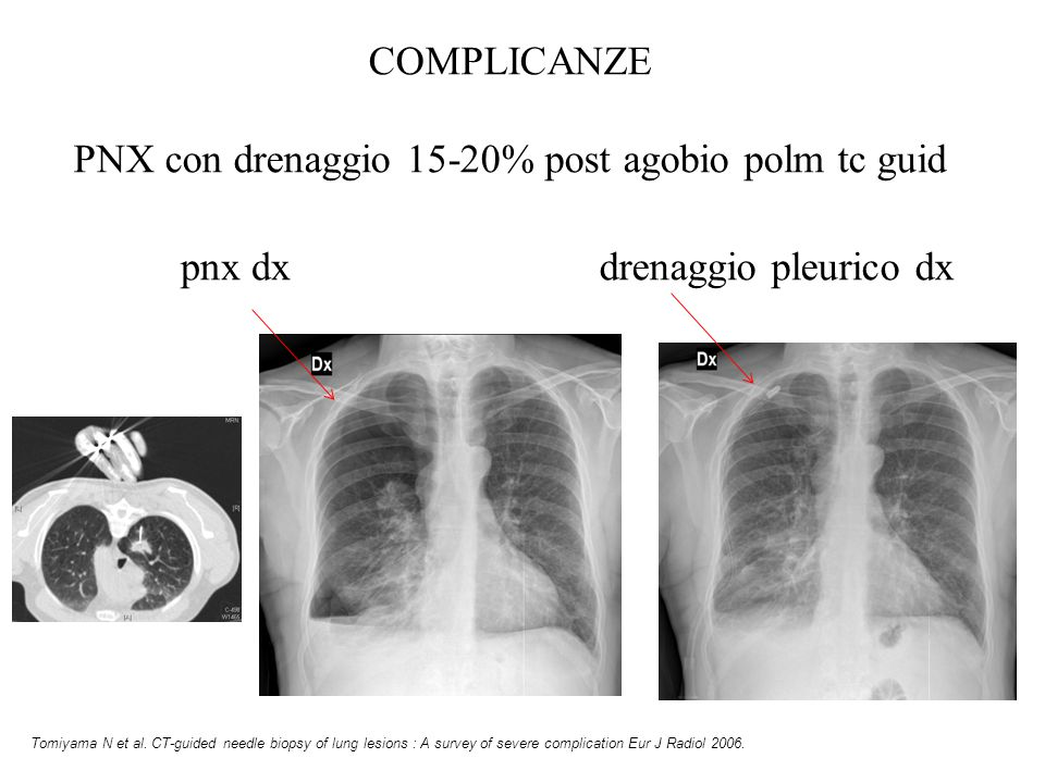 pnx dxdrenaggio pleurico dx Tomiyama N et al. CT-guided needle biopsy of lung lesions : A survey of severe complication Eur J Radiol 2006. COMPLICANZE