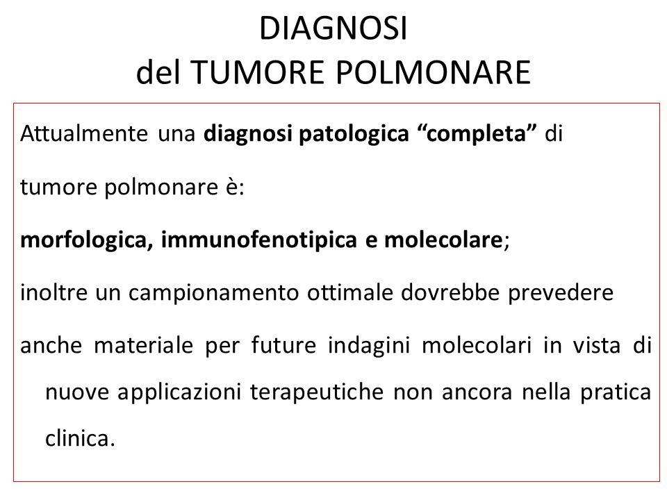 """DIAGNOSI del TUMORE POLMONARE Attualmente una diagnosi patologica """"completa"""" di tumore polmonare è: morfologica, immunofenotipica e molecolare; inoltr"""