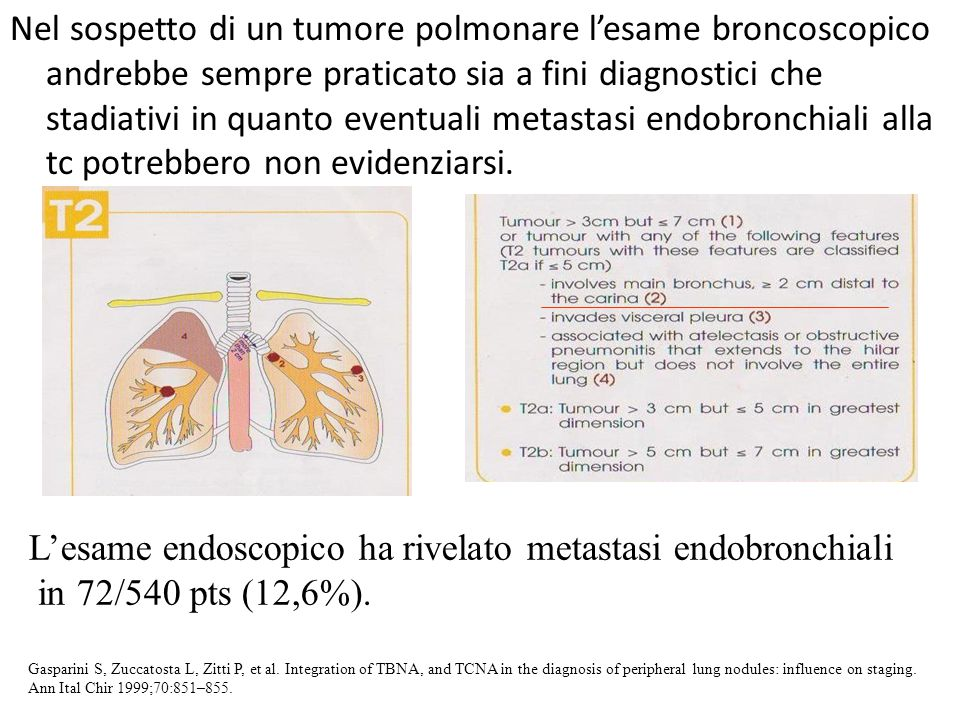 Nel sospetto di un tumore polmonare l'esame broncoscopico andrebbe sempre praticato sia a fini diagnostici che stadiativi in quanto eventuali metastas
