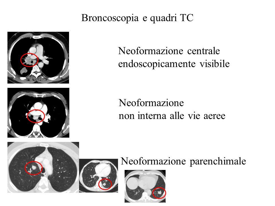 Neoformazione centrale endoscopicamente visibile Agoaspirato Biopsia Brushing Lavaggio