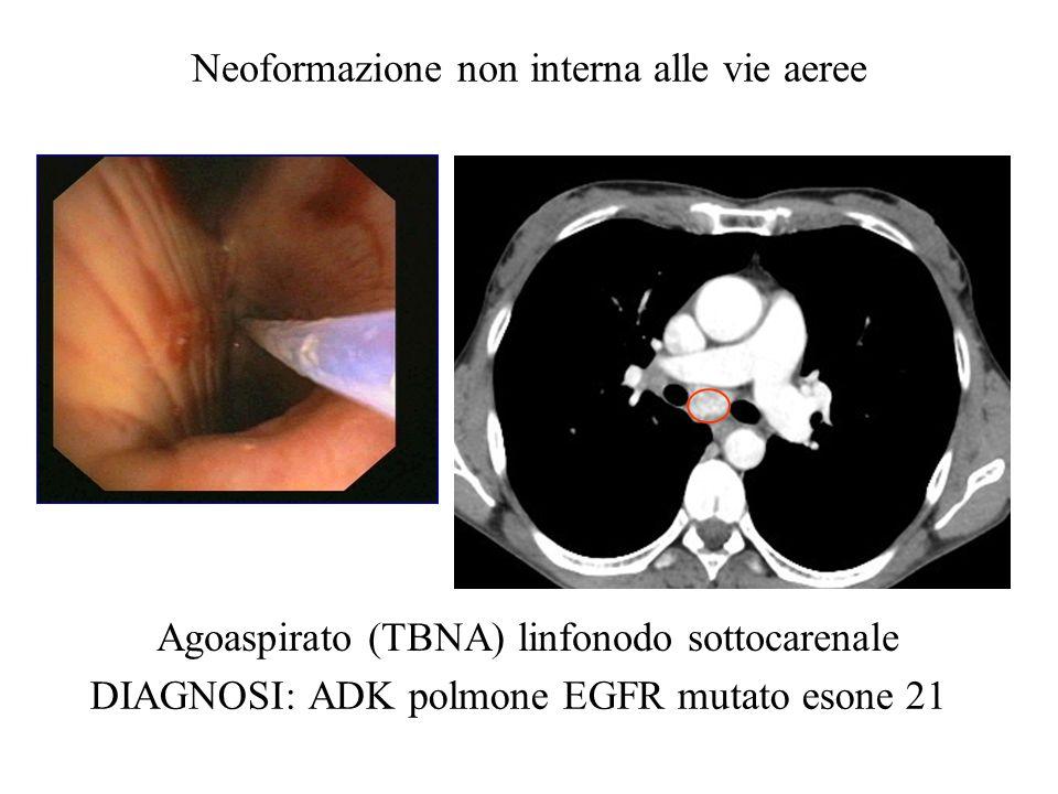 Agoaspirato (TBNA) linfonodo sottocarenale DIAGNOSI: ADK polmone EGFR mutato esone 21 Neoformazione non interna alle vie aeree