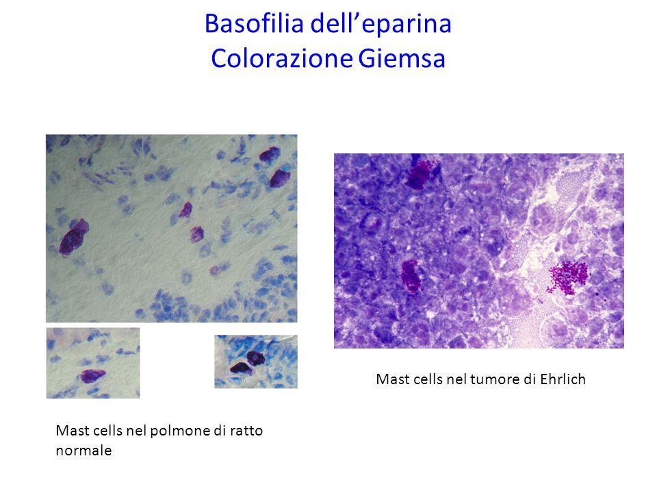 Basofilia dell'eparina Colorazione Giemsa Mast cells nel tumore di Ehrlich Mast cells nel polmone di ratto normale