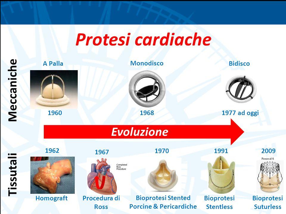 Protesi cardiache Evoluzione 1960 A Palla Monodisco Bidisco 19681977 ad oggi Homograft 1962 1970 Bioprotesi Stented Porcine & Pericardiche 1967 Procedura di Ross 1991 Bioprotesi Stentless 2009 Bioprotesi Suturless Meccaniche Tissutali