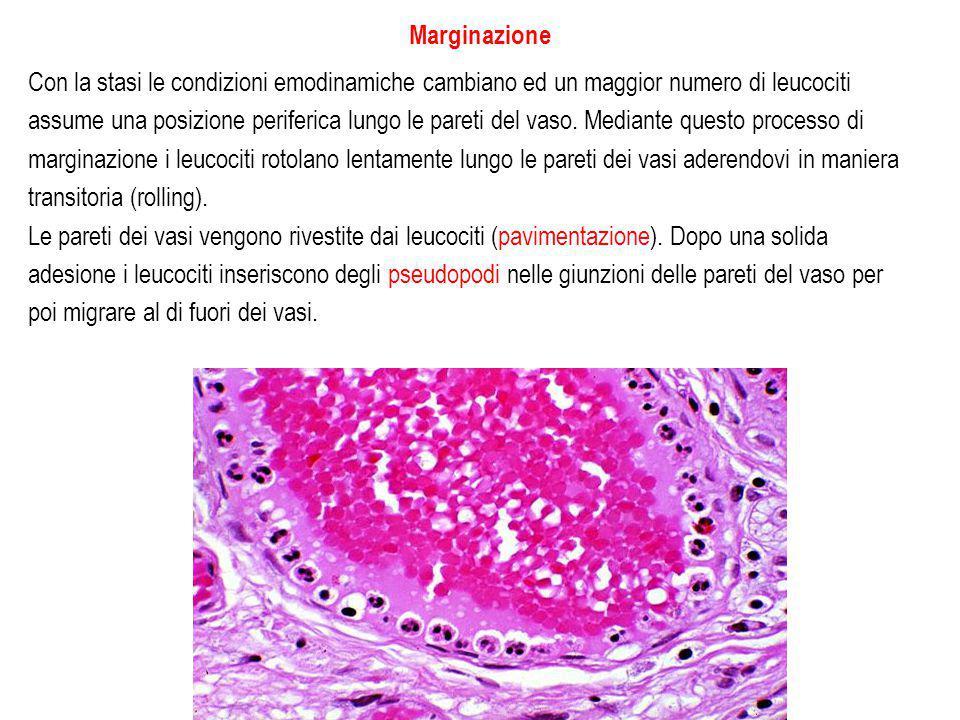 Marginazione Con la stasi le condizioni emodinamiche cambiano ed un maggior numero di leucociti assume una posizione periferica lungo le pareti del vaso.