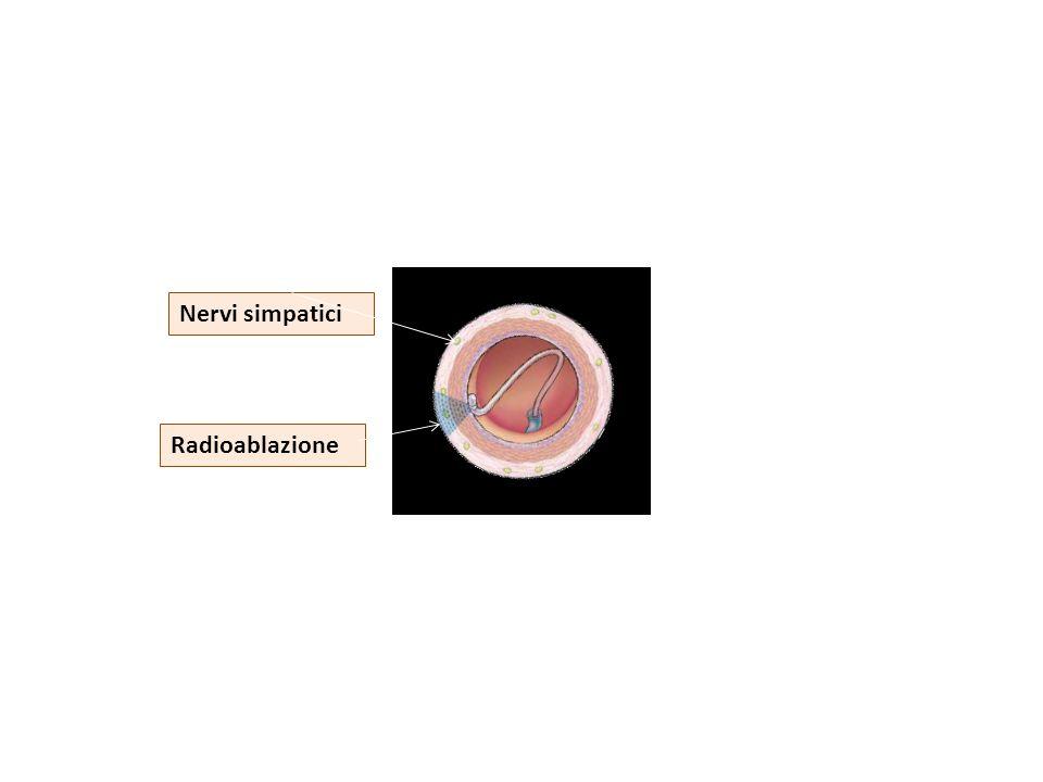 Con il catetere intra-arterioso si producono scariche in radiofrequenza in 4-6 siti in ciascuna delle due arterie renali