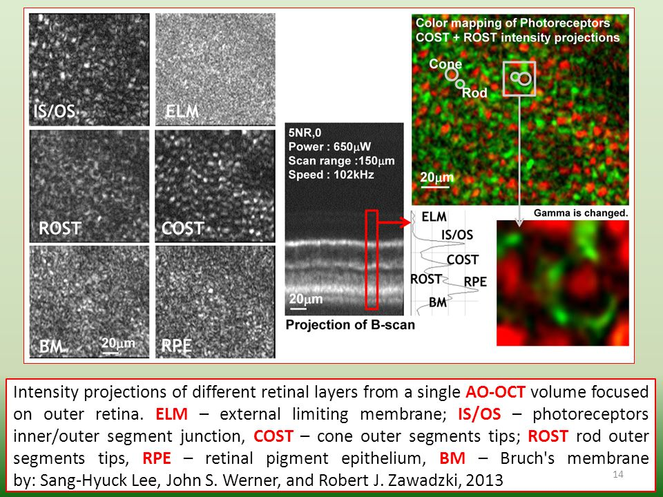 Intensity projections of different retinal layers from a single AO-OCT volume focused on outer retina. ELM – external limiting membrane; IS/OS – photo