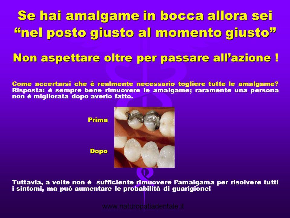 www.naturopatiadentale.it Rimozione amalgama in triplice protezione Amalgame in bocca prima della rimozione protetta