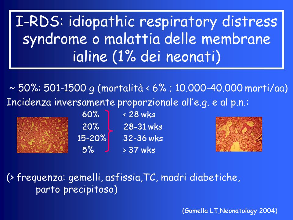 I-RDS: idiopathic respiratory distress syndrome o malattia delle membrane ialine (1% dei neonati) ~ 50%: 501-1500 g (mortalità < 6% ; 10.000-40.000 mo