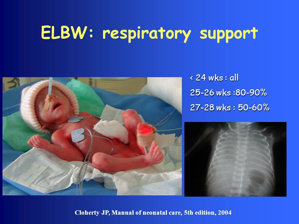 ELBW: respiratory support < 24 wks : all 25-26 wks :80-90% 27-28 wks : 50-60% Cloherty JP, Manual of neonatal care, 5th edition, 2004