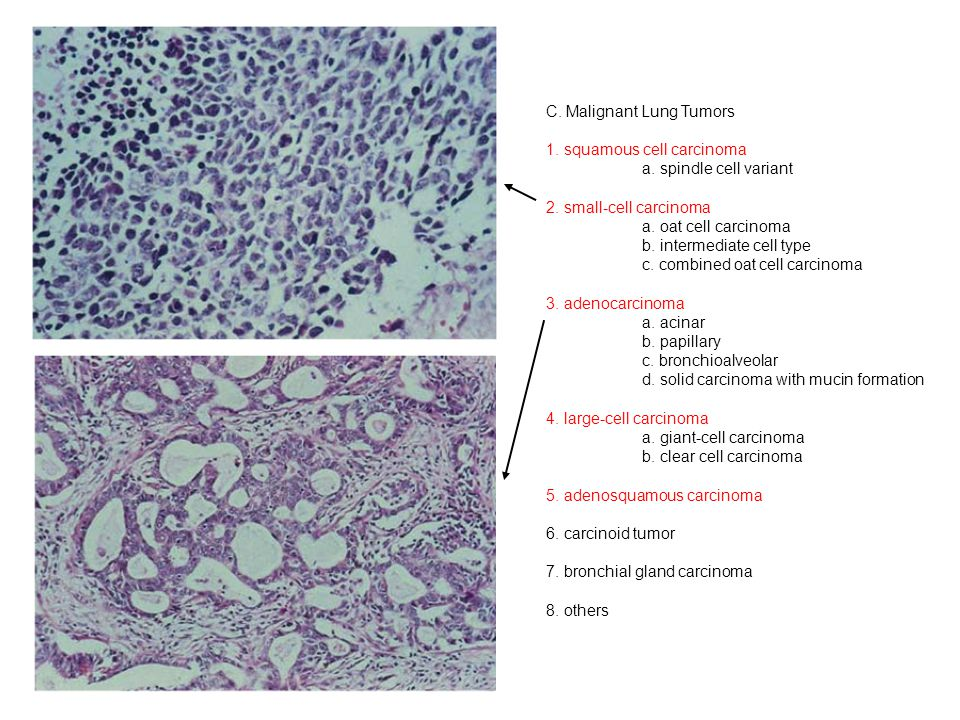 C. Malignant Lung Tumors 1. squamous cell carcinoma a.