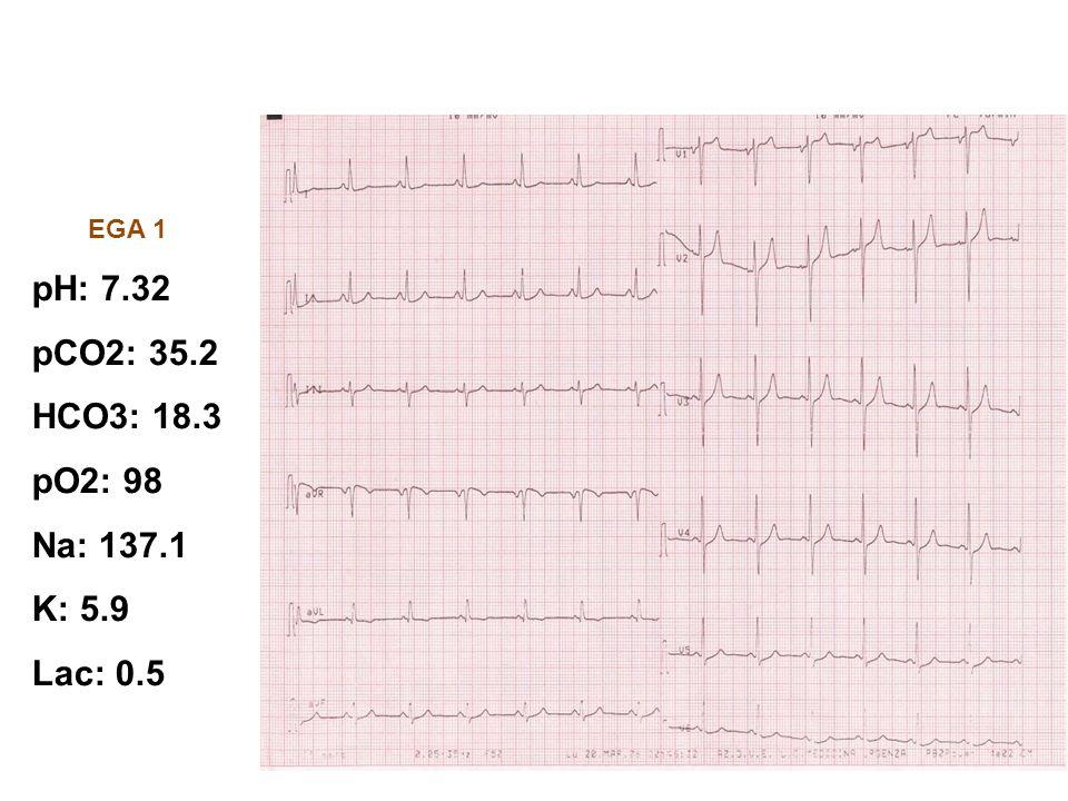 ECOCARDIOGRAMMA: Non alterazioni significative della cinesi ventricolare.