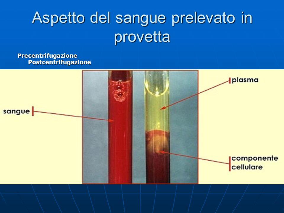 Aspetto del sangue prelevato in provetta Precentrifugazione Postcentrifugazione