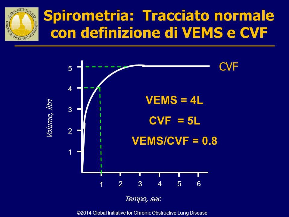 Spirometria: Tracciato normale con definizione di VEMS e CVF 123456 1 2 3 4 Volume, litri Tempo, sec CVF 5 1 VEMS = 4L CVF = 5L VEMS/CVF = 0.8 ©2014 G