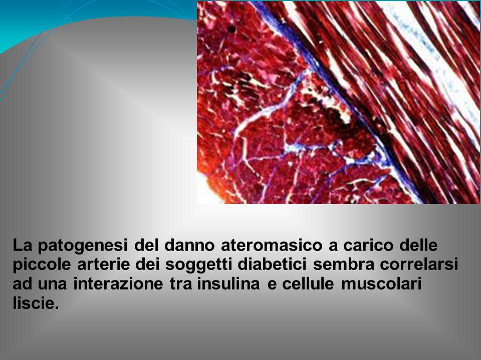 La patogenesi del danno ateromasico a carico delle piccole arterie dei soggetti diabetici sembra correlarsi ad una interazione tra insulina e cellule