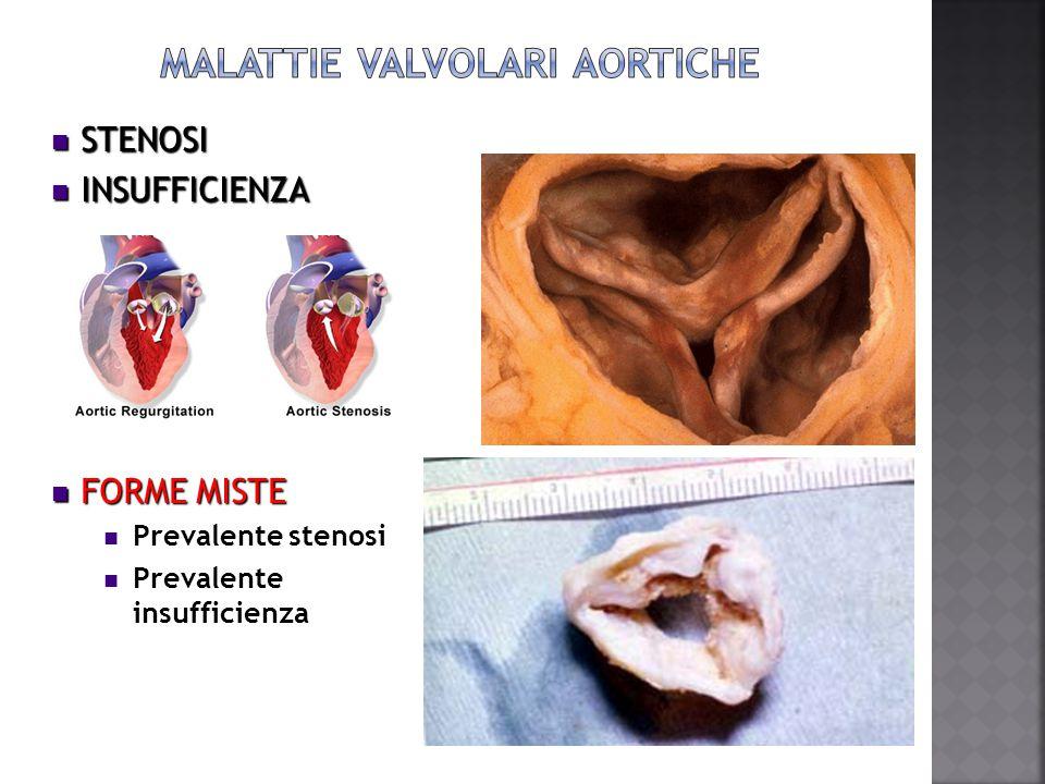  renal failure,  familial hypercholesterolemia,  Paget disease,  systemic lupus erythematosus,  ochronosis with alkaptonuria,  Radiation  left ventricular noncompaction systemic lupus erythematosus