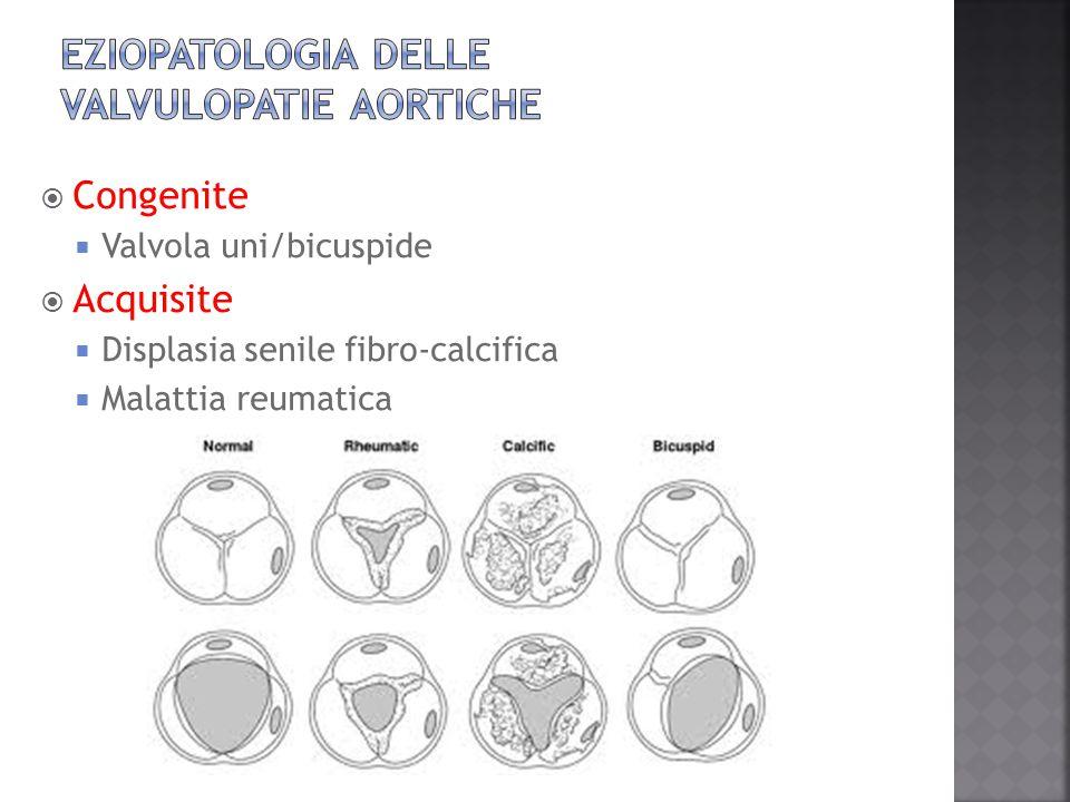  Congenite  Valvola uni/bicuspide  Acquisite  Displasia senile fibro-calcifica  Malattia reumatica