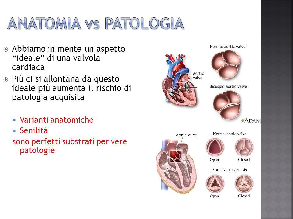 """ Abbiamo in mente un aspetto """"ideale"""" di una valvola cardiaca  Più ci si allontana da questo ideale più aumenta il rischio di patologia acquisita """