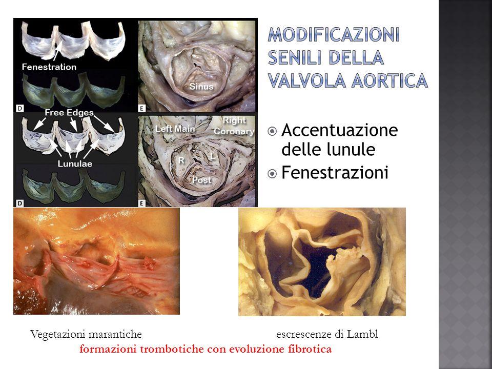  Accentuazione delle lunule  Fenestrazioni Vegetazioni maranticheescrescenze di Lambl formazioni trombotiche con evoluzione fibrotica