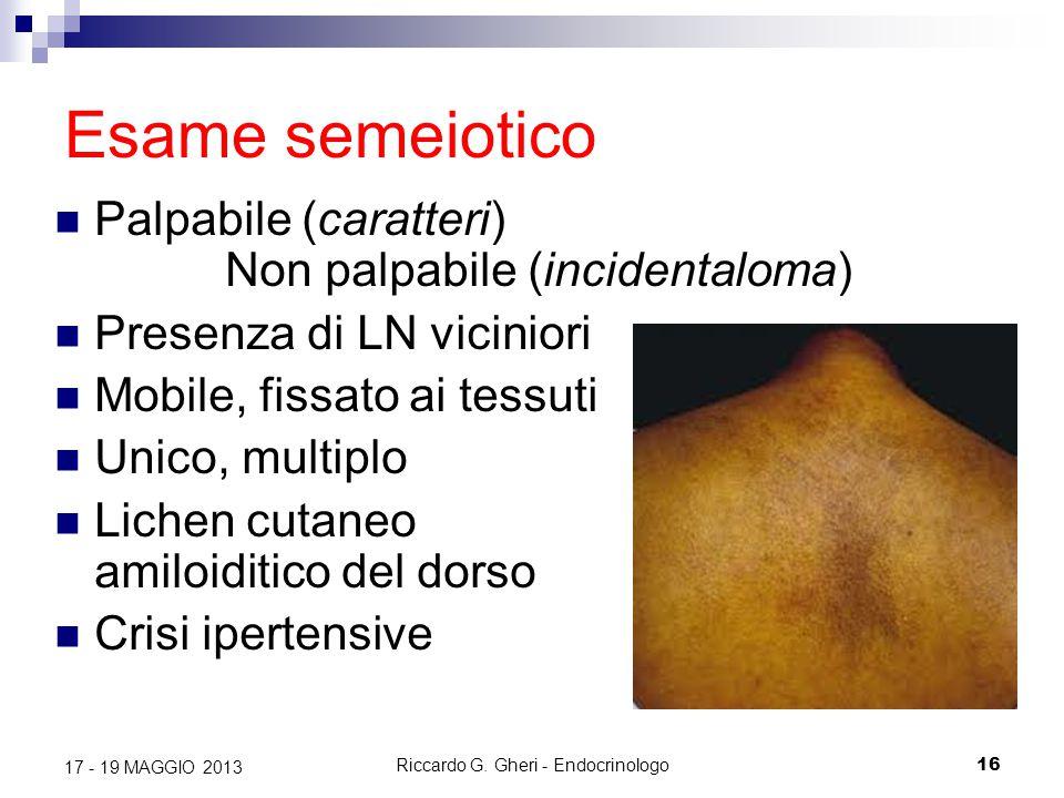 Riccardo G. Gheri - Endocrinologo16 17 - 19 MAGGIO 2013 Esame semeiotico Palpabile (caratteri) Non palpabile (incidentaloma) Presenza di LN viciniori