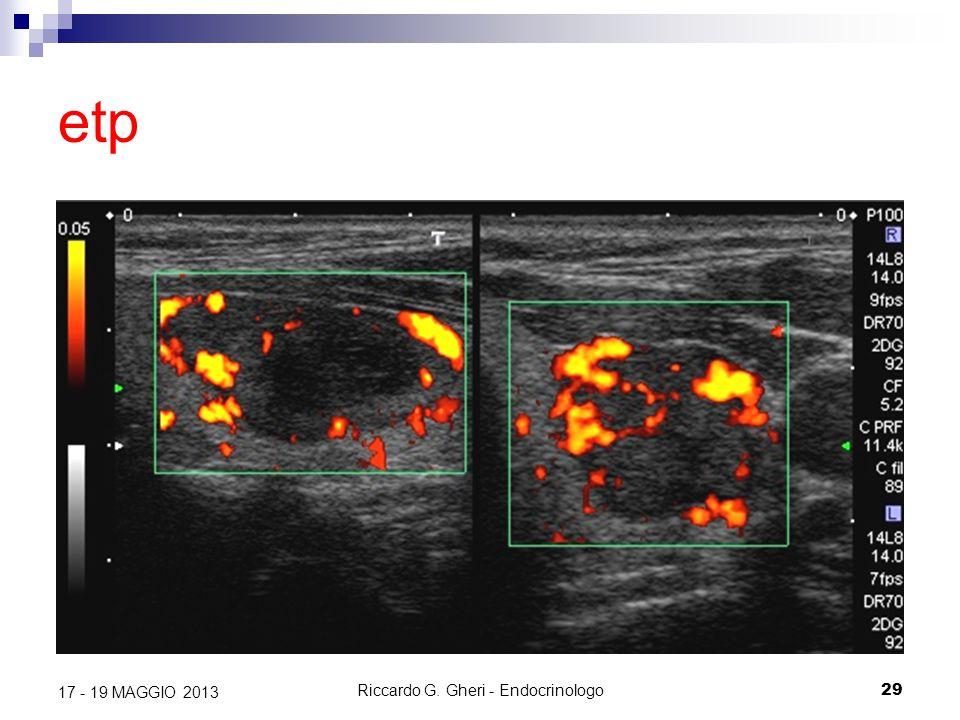 Riccardo G. Gheri - Endocrinologo29 17 - 19 MAGGIO 2013 etp