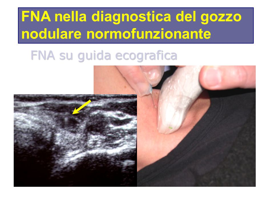 FNA su guida ecografica FNA nella diagnostica del gozzo nodulare normofunzionante