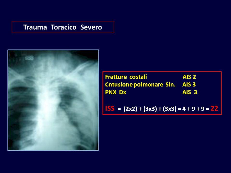 Trauma Toracico Severo Fratture costali AIS 2 Cntusione polmonare Sin.