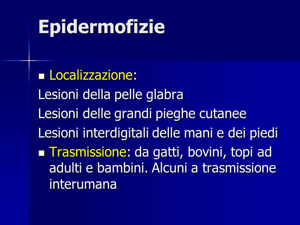 Epidermofizie Localizzazione: Localizzazione: Lesioni della pelle glabra Lesioni delle grandi pieghe cutanee Lesioni interdigitali delle mani e dei pi