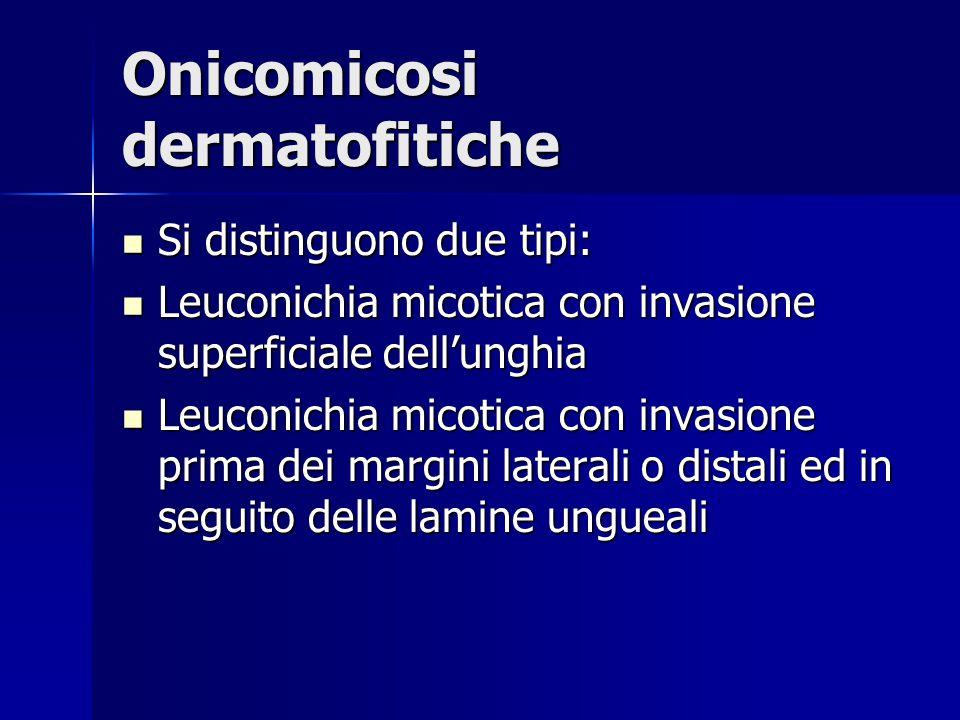 Onicomicosi dermatofitiche Si distinguono due tipi: Si distinguono due tipi: Leuconichia micotica con invasione superficiale dell'unghia Leuconichia m
