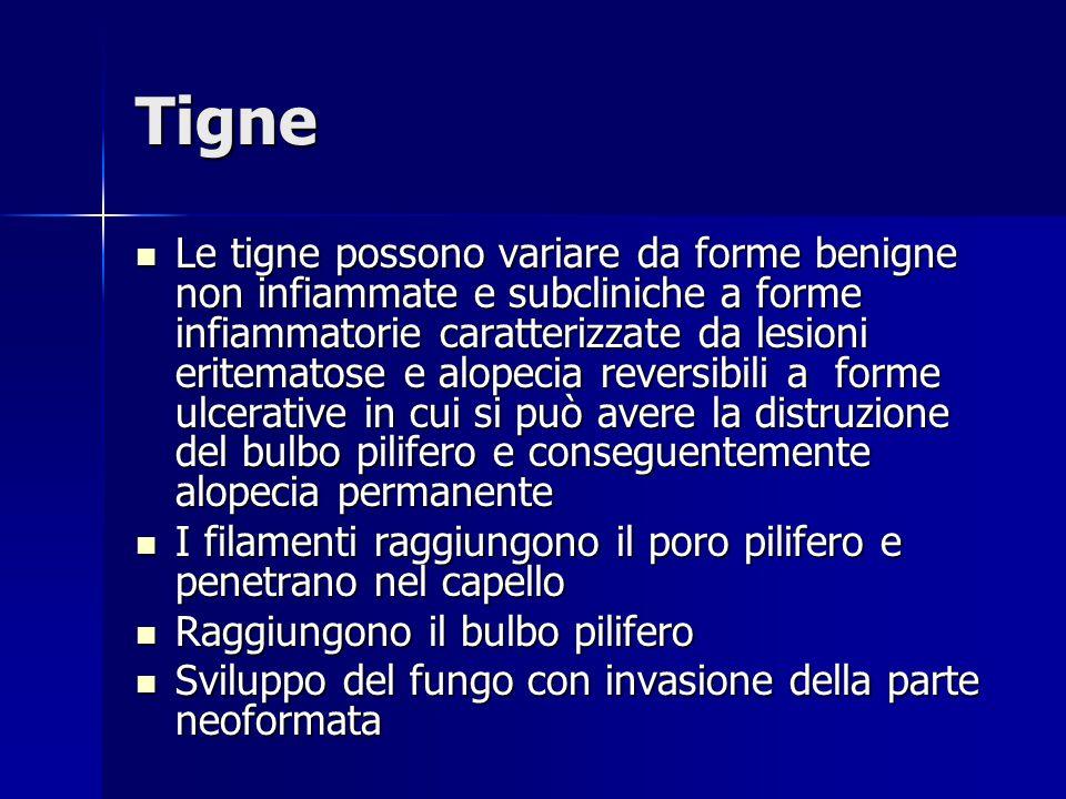Tigne Le tigne possono variare da forme benigne non infiammate e subcliniche a forme infiammatorie caratterizzate da lesioni eritematose e alopecia re