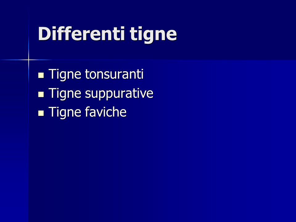 Differenti tigne Tigne tonsuranti Tigne tonsuranti Tigne suppurative Tigne suppurative Tigne faviche Tigne faviche
