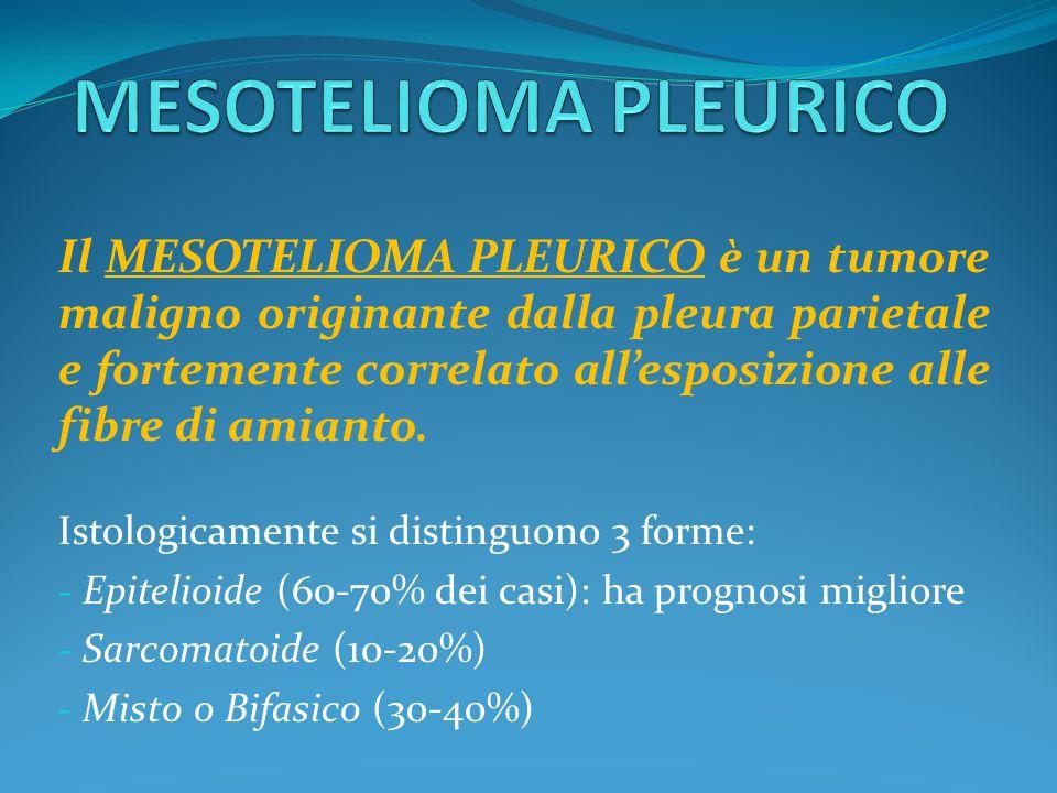 Il MESOTELIOMA PLEURICO è un tumore maligno originante dalla pleura parietale e fortemente correlato all'esposizione alle fibre di amianto. Istologica
