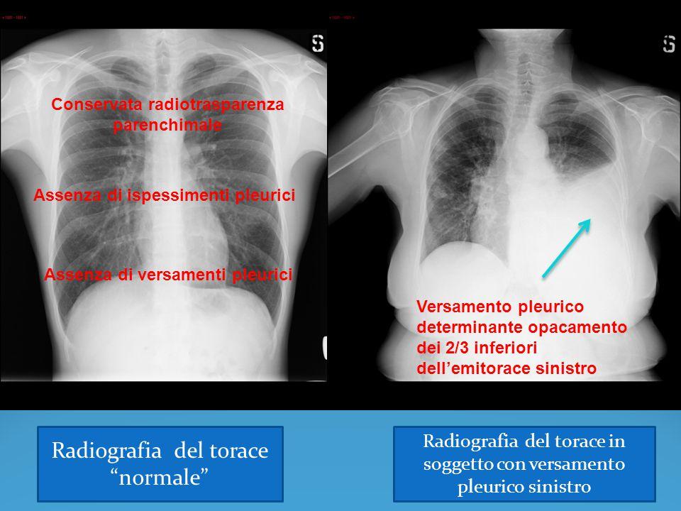 Conservata radiotrasparenza parenchimale Assenza di versamenti pleurici Assenza di ispessimenti pleurici Versamento pleurico determinante opacamento d