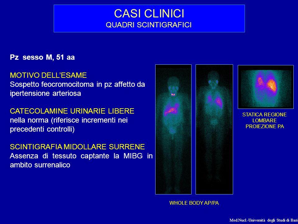 Med.Nucl.-Università degli Studi di Bari CASI CLINICI QUADRI SCINTIGRAFICI Pz sesso M, 51 aa MOTIVO DELL'ESAME Sospetto feocromocitoma in pz affetto d