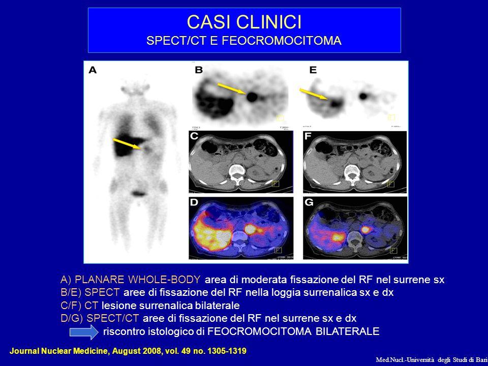 Med.Nucl.-Università degli Studi di Bari CASI CLINICI SPECT/CT E FEOCROMOCITOMA A)PLANARE WHOLE-BODY area di moderata fissazione del RF nel surrene sx