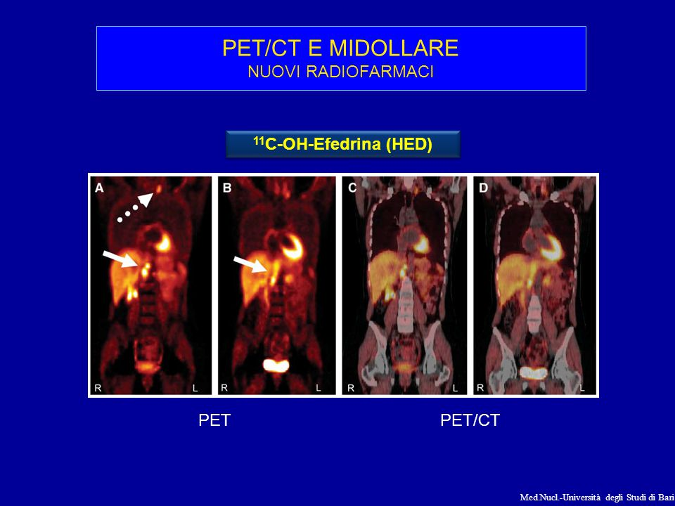 Med.Nucl.-Università degli Studi di Bari PET/CT E MIDOLLARE NUOVI RADIOFARMACI 11 C-OH-Efedrina (HED) PETPET/CT