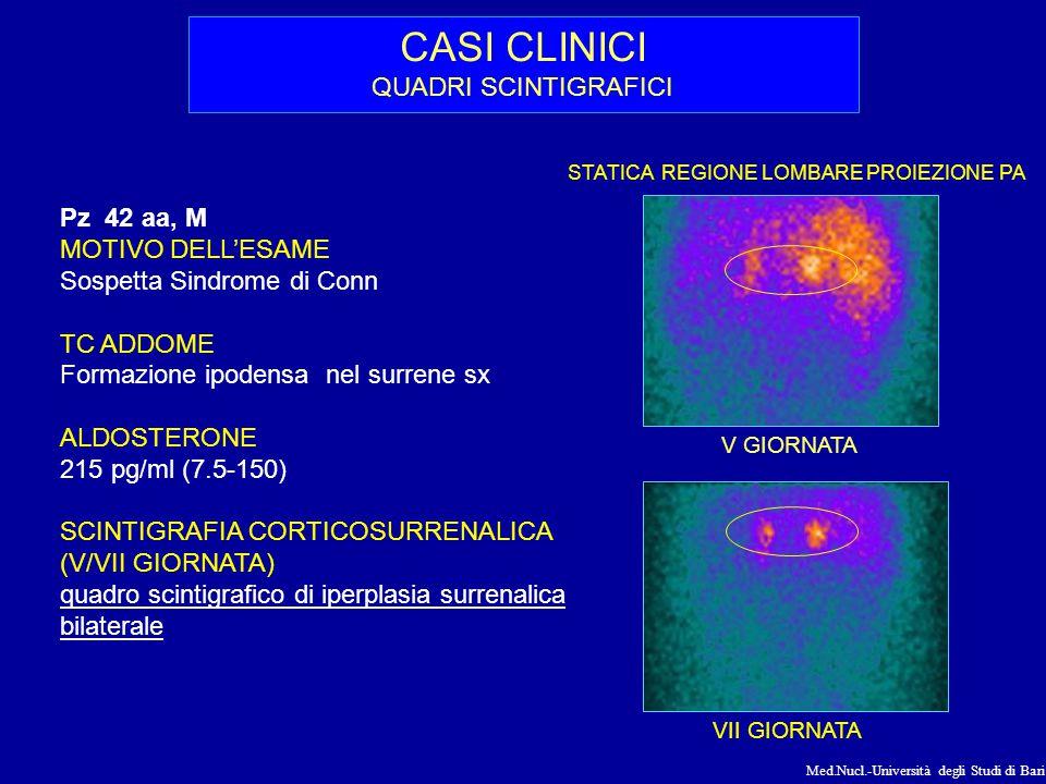Med.Nucl.-Università degli Studi di Bari CASI CLINICI QUADRI PET/CT 18FDG Pz sesso M, 77 aa MOTIVO DELL'ESAME Nodulo polmonare e versamento pleurico dx TC torace Piccola formazione surrenalica sx, nodulo sub- pleurico del LSD, ispessimenti della pleura parietale bilaterali 18 FDG PET/CT Total-Body Neoformazione nel surrene sx (SUV max 16.1), in sede paravertebrale dx (SUV max 18.4), nel recesso costo-frenico dx (SUV max 17.6), in sede periepatica (SUV max 15.9).