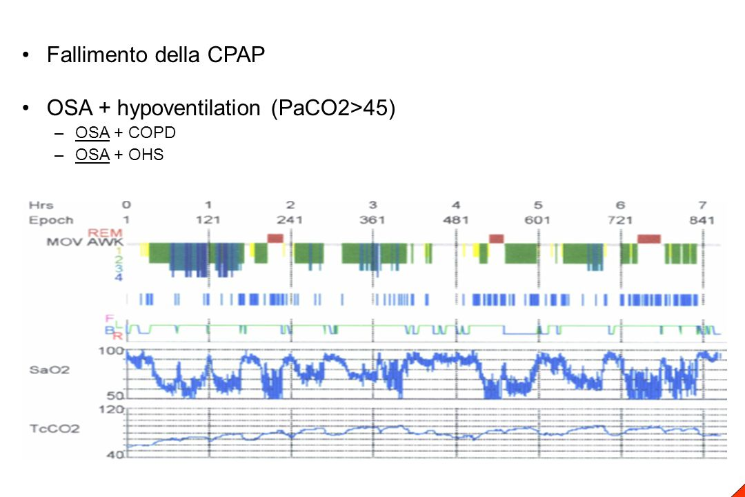 Fallimento della CPAP OSA + hypoventilation (PaCO2>45) –OSA + COPD –OSA + OHS