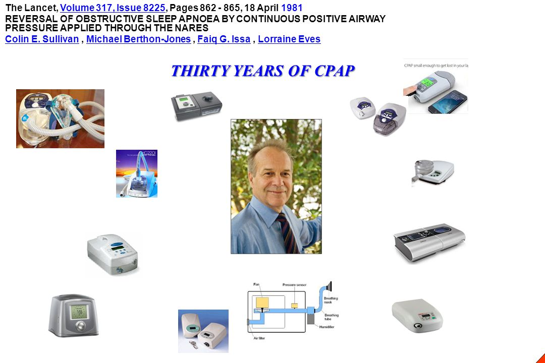 THIRTY YEARS OF CPAP The Lancet, Volume 317, Issue 8225, Pages 862 - 865, 18 April 1981Volume 317, Issue 8225 REVERSAL OF OBSTRUCTIVE SLEEP APNOEA BY