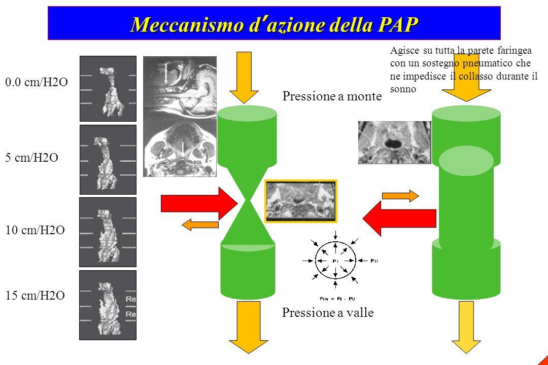 Meccanismo d'azione della PAP 0.0 cm/H2O 5 cm/H2O 10 cm/H2O 15 cm/H2O Pressione a monte Pressione a valle Agisce su tutta la parete faringea con un so