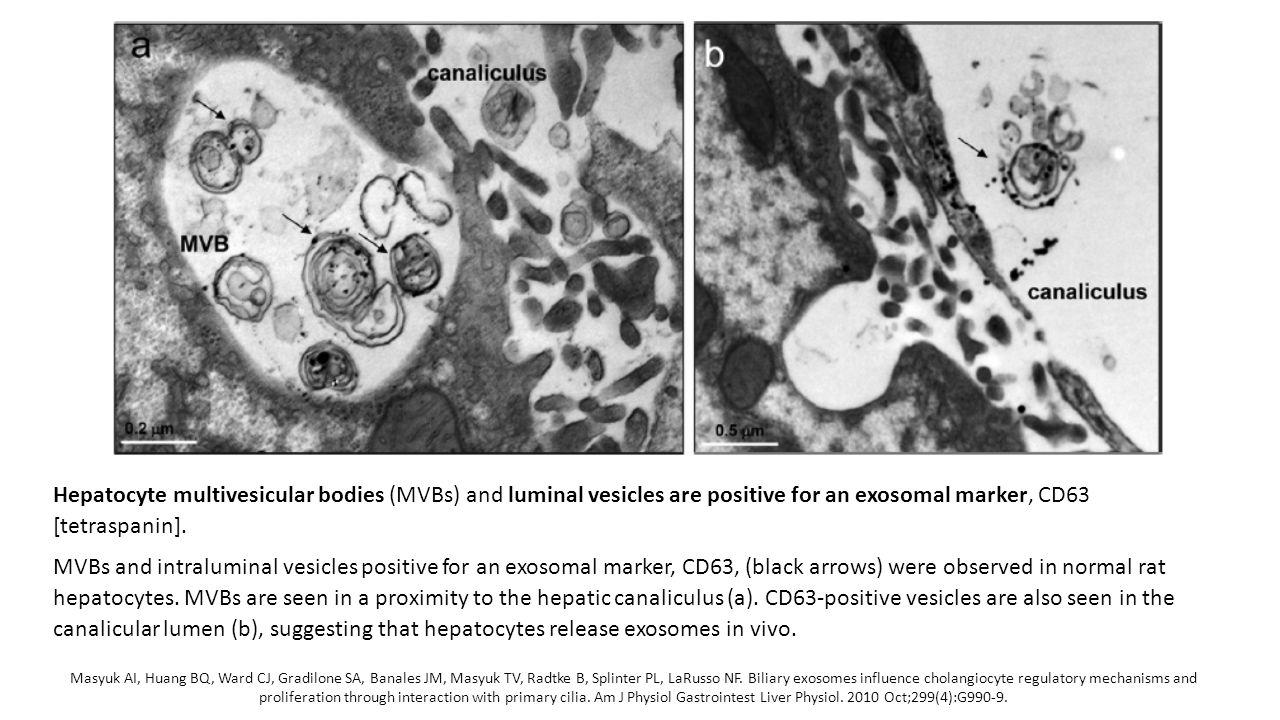 Masyuk AI, Huang BQ, Ward CJ, Gradilone SA, Banales JM, Masyuk TV, Radtke B, Splinter PL, LaRusso NF. Biliary exosomes influence cholangiocyte regulat