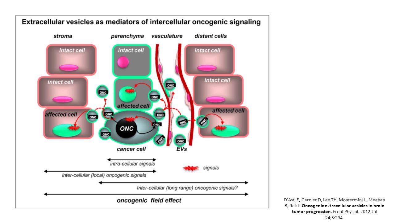 D'Asti E, Garnier D, Lee TH, Montermini L, Meehan B, Rak J. Oncogenic extracellular vesicles in brain tumor progression. Front Physiol. 2012 Jul 24;3: