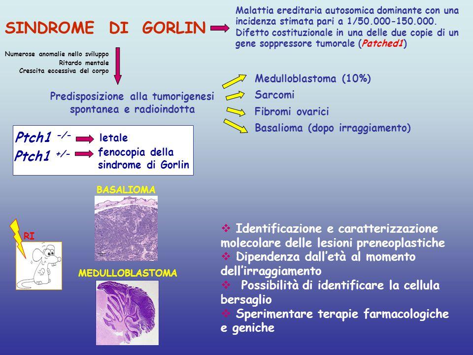 SINDROME DI GORLIN Predisposizione alla tumorigenesi spontanea e radioindotta Medulloblastoma (10%) Sarcomi Fibromi ovarici Basalioma (dopo irraggiame