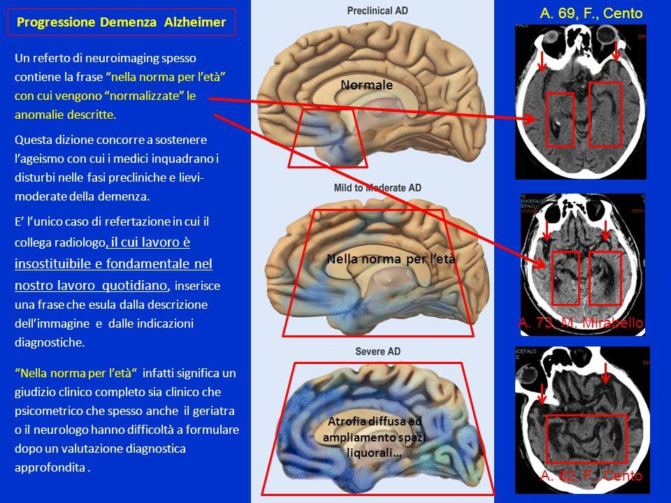 Progressione Demenza Alzheimer Anno 0-3 Apatia, abulia, e/o amnesie senza compromissione funzionale ADL e IADL normali GPCog : 5-8/9 MMSE : 21-26/30 ; se QI/ riserva cognitiva elevata anche > 26 Anno 3-5 Amnesie funzionalmente rilevanti, peggioramento disturbi Comportam.