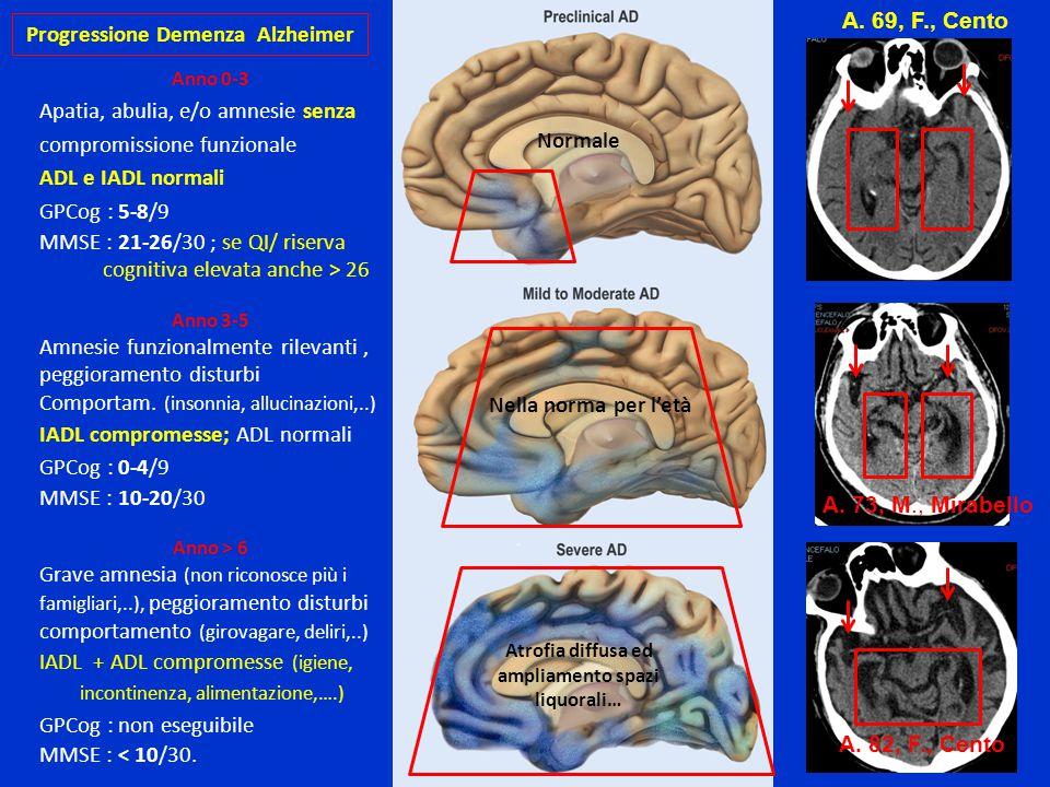 Progressione Demenza Alzheimer Anno 0-3 Apatia, abulia, e/o amnesie senza compromissione funzionale ADL e IADL normali GPCog : 5-8/9 MMSE : 21-26/30 ;