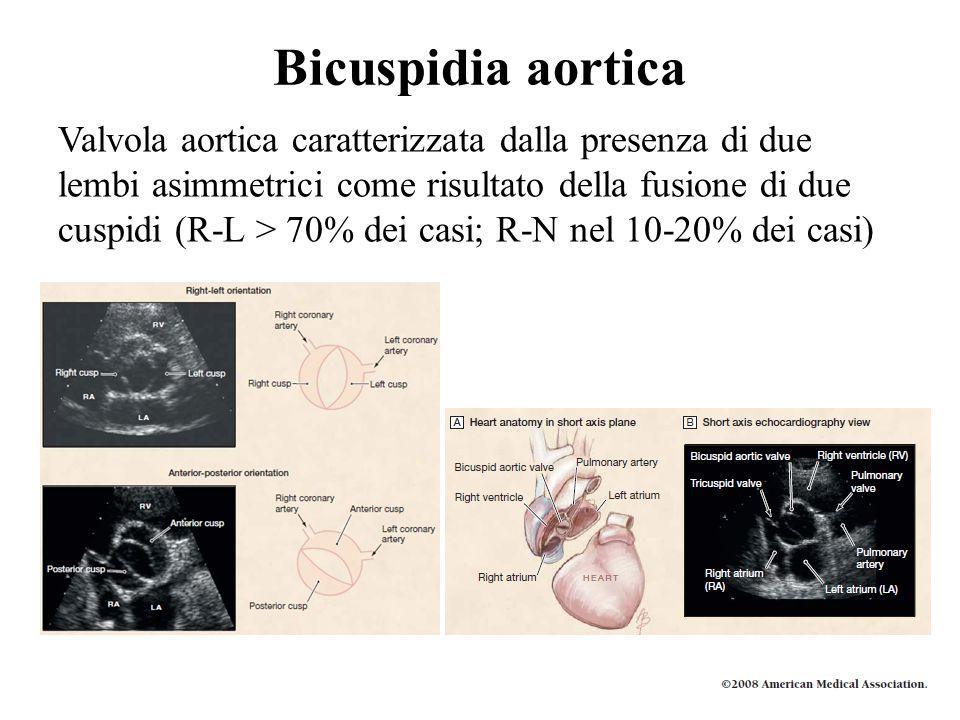 Bicuspidia aortica Valvola aortica caratterizzata dalla presenza di due lembi asimmetrici come risultato della fusione di due cuspidi (R-L > 70% dei c